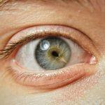 scar in the eye